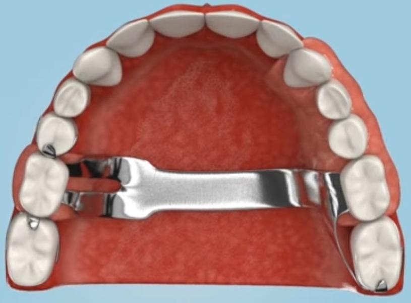 Что такое мягкие или гибкие зубные протезы. Преимущества и особенности ухода