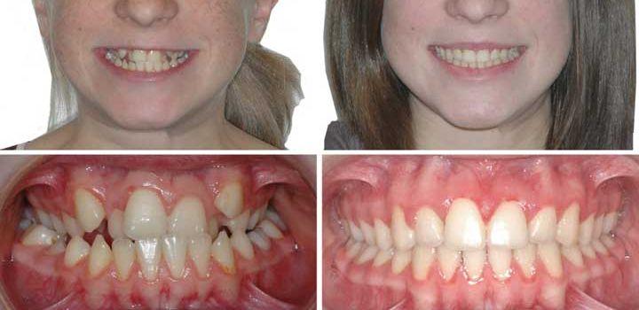 Зачем ставить пластинки для зубов. Для детей это может быть необходимо