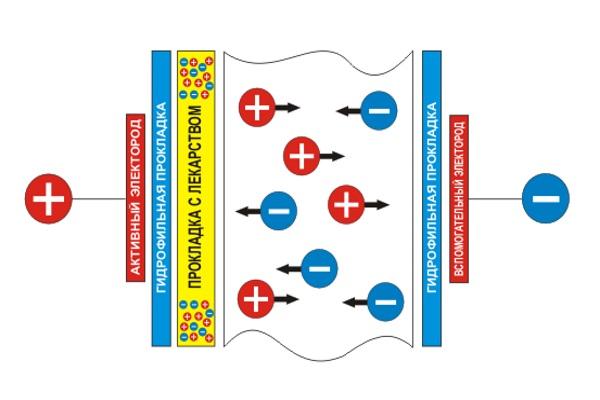 Механизм действия электрофореза