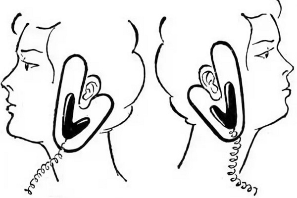 Расположение электродов при проведении электрофореза по шейно-лицевой методике Келлата- Змановского