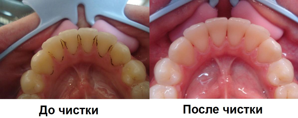 Как делается гигиеническая профессиональная чистка зубов у стоматолога. Три основных метода, и что в них входит