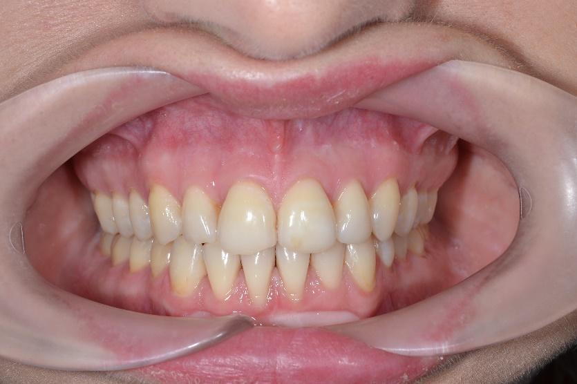 этой наколки неправильный прикус зубов картинки того