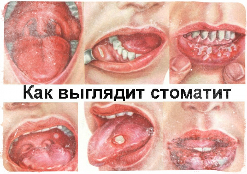 Заразен или нет стоматит? Все, что нужно знать о том, как передается инфекция