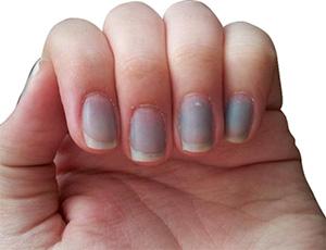 посинение ногтей из-за отравления нитратами