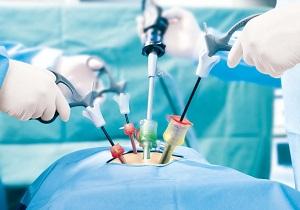 лапароскопия почки