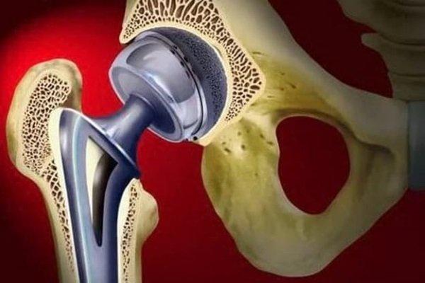 Физиолечение после эндопротезирования тазобедренного сустава