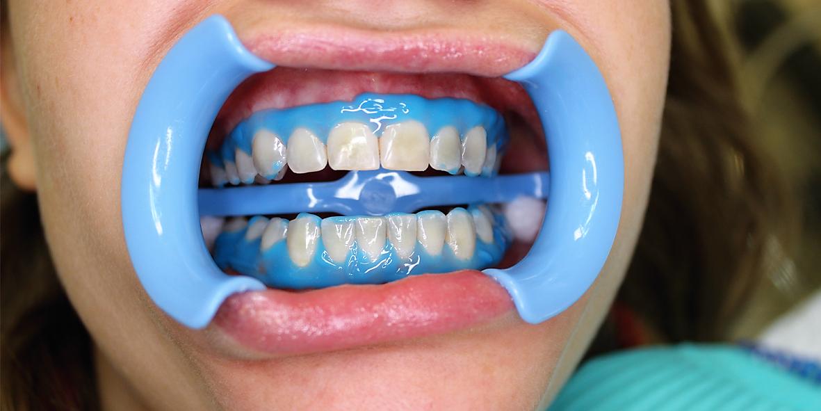 Что такое фотоотбеливание зубов, и чем оно отличается от светового. Плюсы и минусы обоих способов