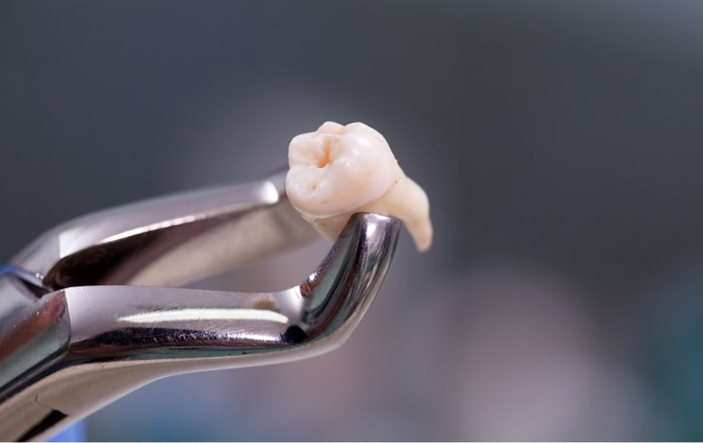 Как происходит удаление зуба мудрости на верхней челюсти. Сложность операции и её возможные последствия