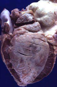 Сердце при туберкулезном перикардите