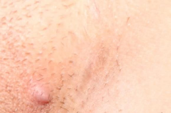 Способы передачи генитального герпеса