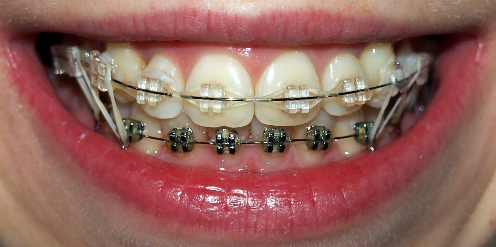 Это должен знать каждый, кто выравнивает зубы: что делать если брекет отклеился от зуба или натирает