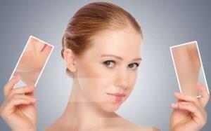 лицо женщины до и после оздоровления кожи