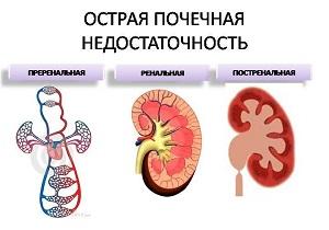 острая почечная недостаточность симптомы