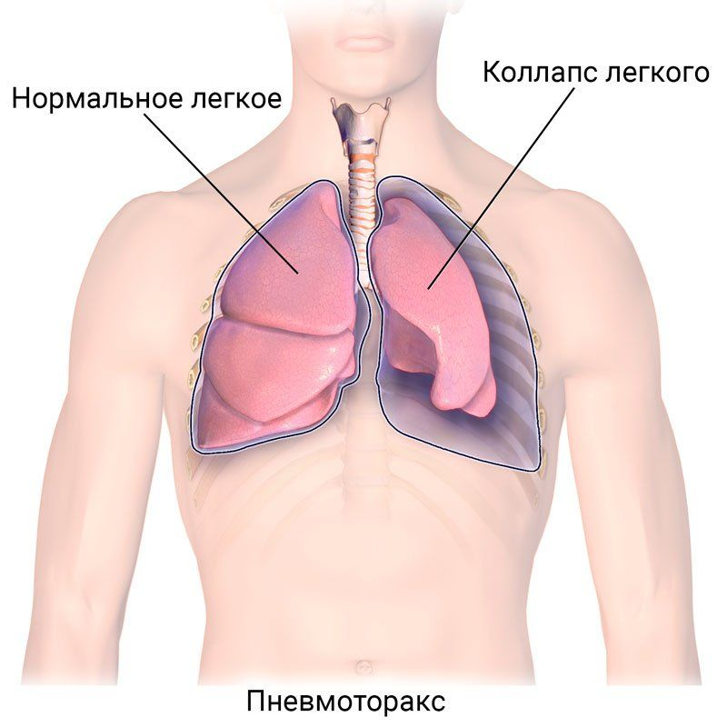 Пневмоторакс легких