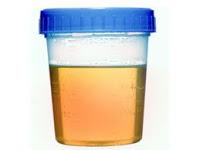 билирубин в моче