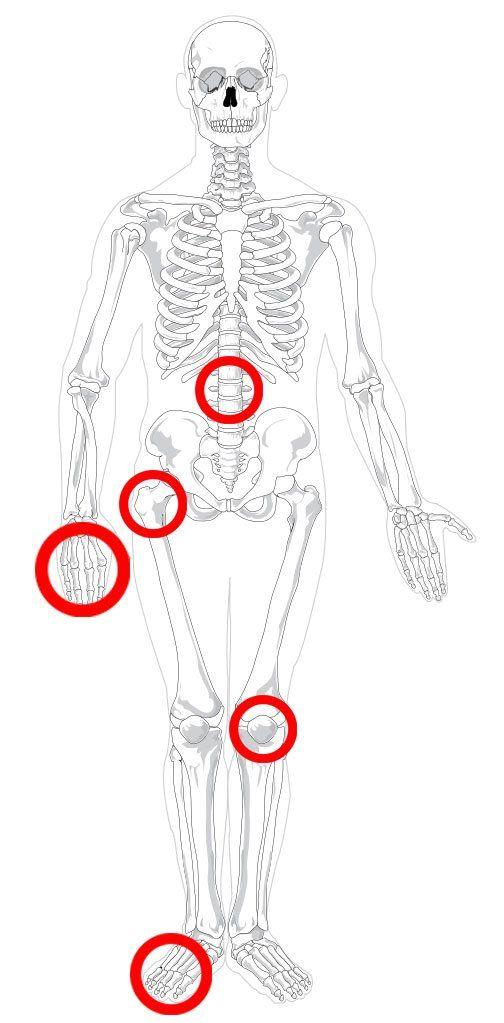Проявления туберкулеза костей и суставов
