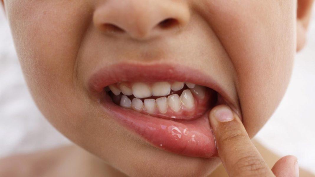 Лечение травматического стоматита у взрослых и детей. Запускать нельзя