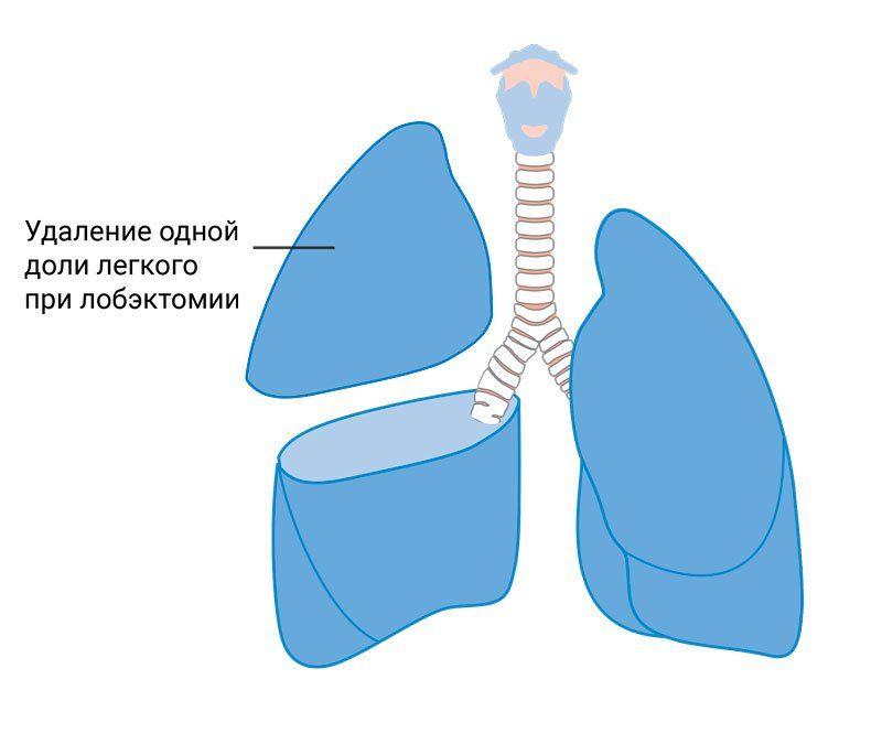 Схема лобэктомии