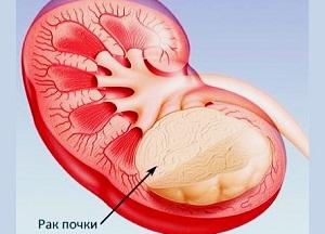 продолжительность жизни после удаления рака почки