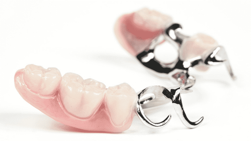 Почему зубные протезы нового поколения без неба пользуются популярностью