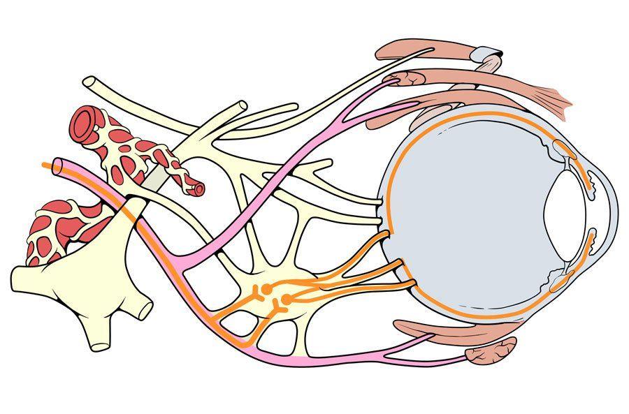 Как выглядят зрительные нервы