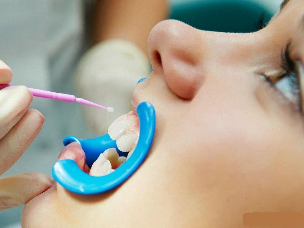 Почему появляются белые пятна на зубах у ребенка
