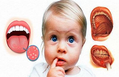 Пузырьковая сыпь герпесный стоматит у детей. Лечение