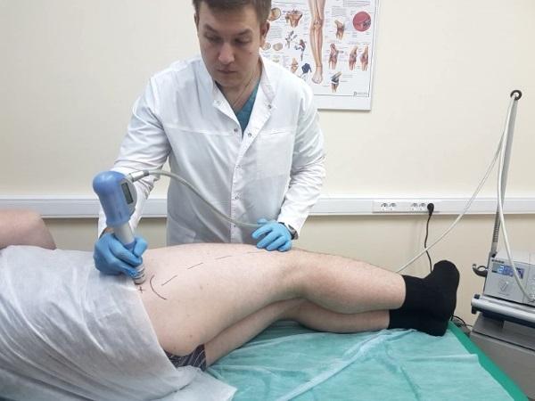 Ударно-волновая терапия при коксартрозе