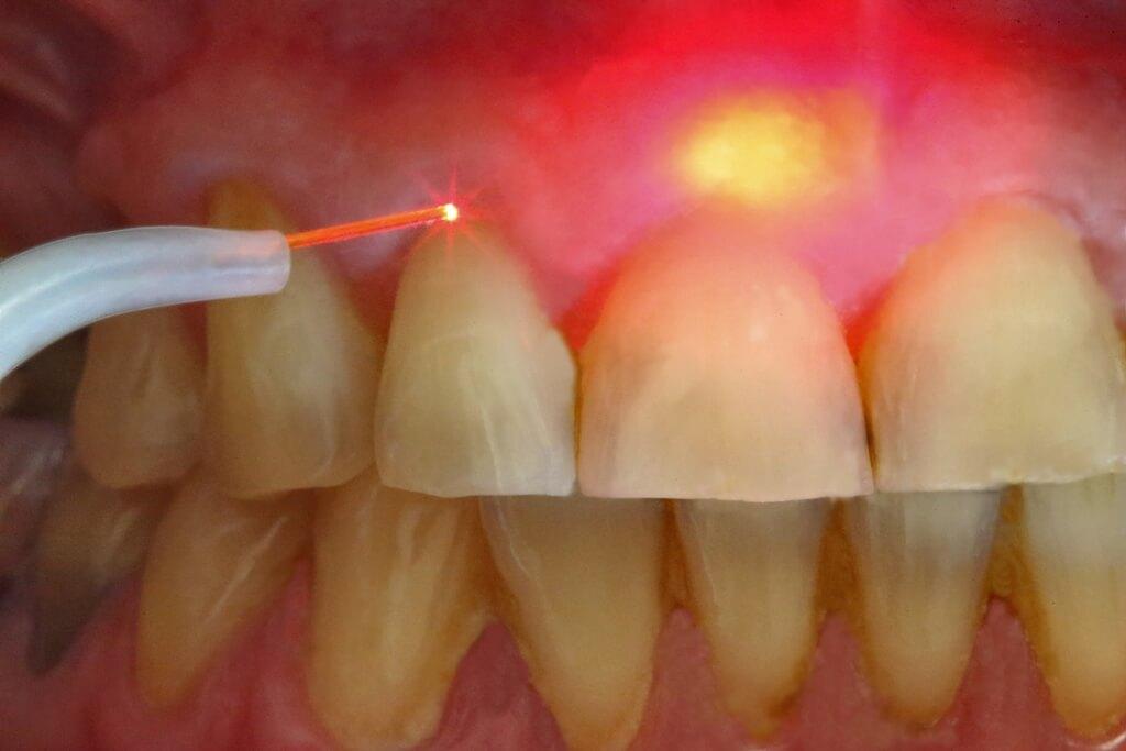Как происходит удаление кисты зуба. Больно ли это