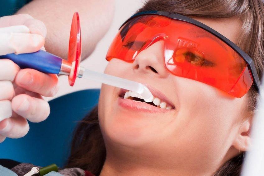 Что такое ультразвуковая чистка зубов. Эффективное отбеливание и удаление зубного камня