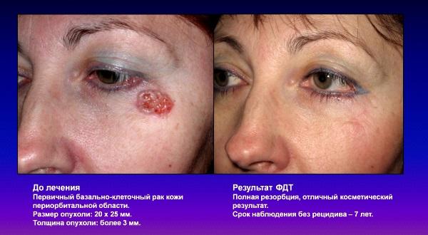ФДТ при базально-клеточном раке кожи
