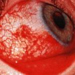 Инфекционные конъюнктивиты