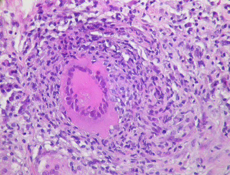Очаговый туберкулез легких под микроскопом
