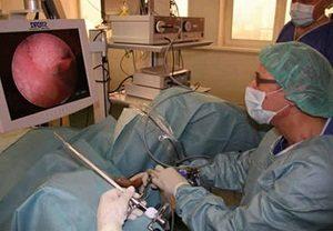 цистоскопия отзывы женщин