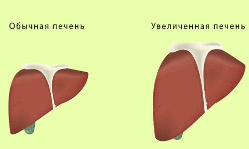 Билиарная форма панкреатита чаще всего возникает на фоне заболеваний печени