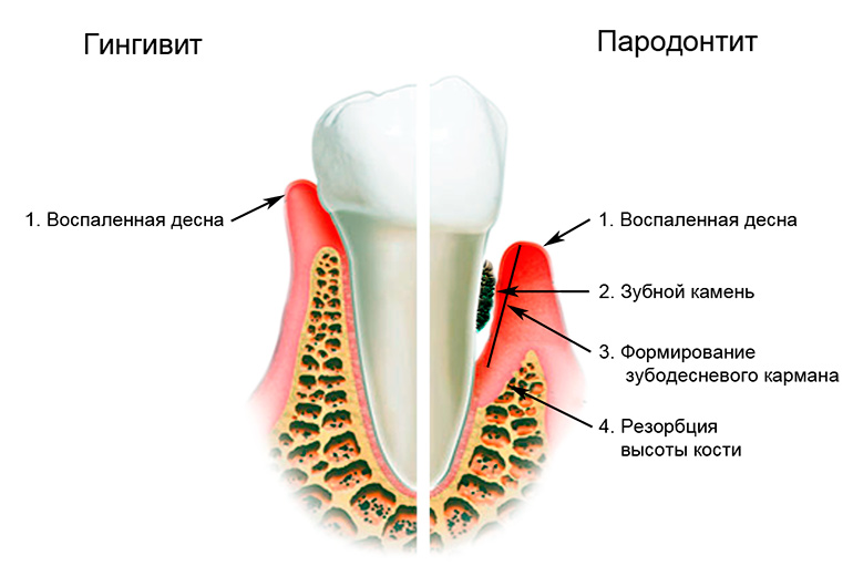 Что делать, если кровоточат дёсны. Причины и лечение в стоматологии и домашних условиях