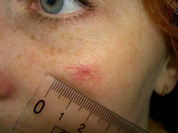 Сосудистая звездочка и расширенные капилляры на щеке