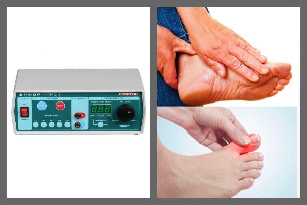 Электрофорез усиливает проникновение наружных лекарственных препаратов через кожу