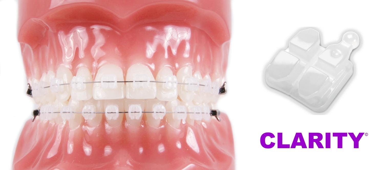 Особенности и преимущества керамических брекетов Clarity от 3M Unitek. Модели SL и Advanced