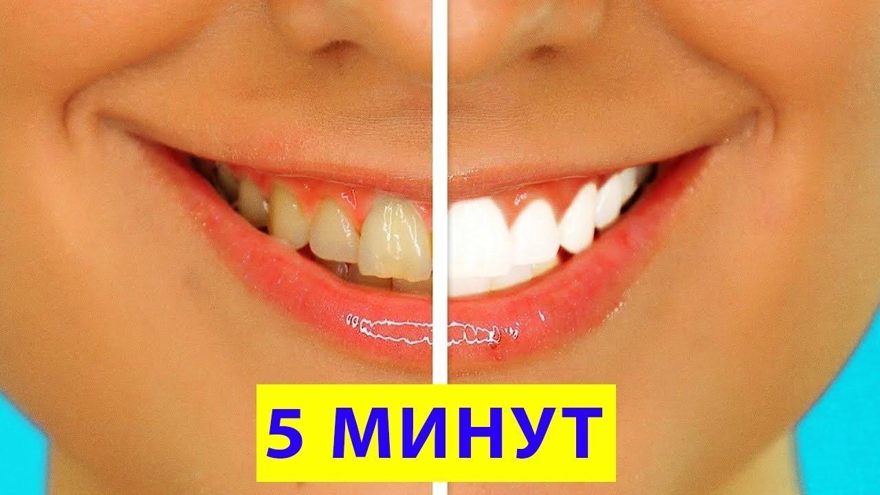 Средства и методы мгновенного отбеливания зубов. Возможно ли это в домашних условиях