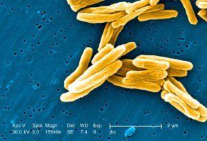 Туберкулезная палочка под микроскопом