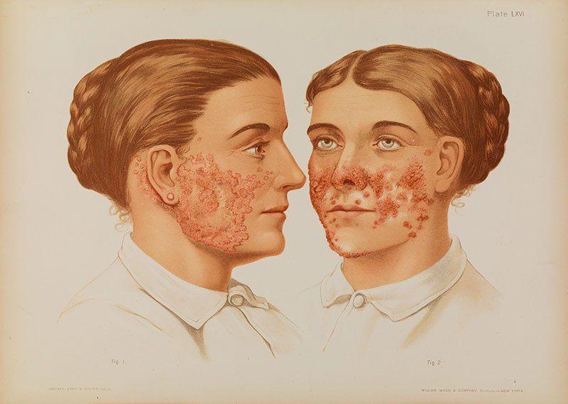 Бородавчатые туберкулез