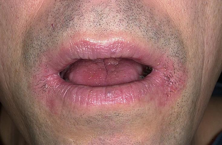 Причины и лечение ангулярного стоматита или ангулита. Как сделать уголки губ снова здоровыми и красивыми