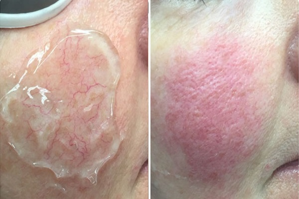 Отечность и гиперемия кожи после сеанса фототерапии