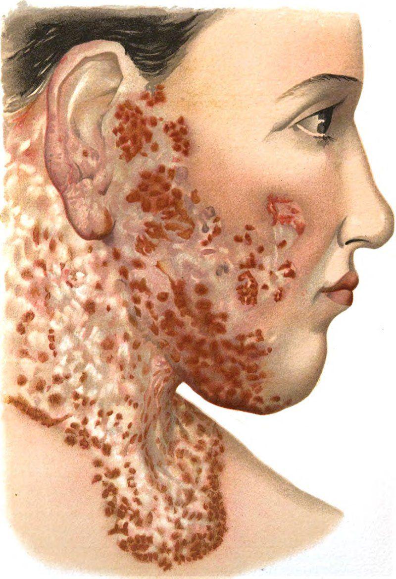Туберкулез лица и щек