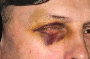 Способы устранения гематомы под глазом