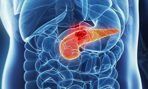 Хроническим псевдотуморозным панкреатитом называется воспалительное заболевание поджелудочной железы, характеризующееся увеличением органа