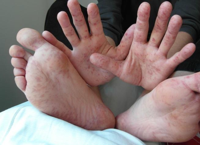 Энтеровирусный везикулярный стоматит. И что про синдром рука-нога-рот говорит доктор Комаровский