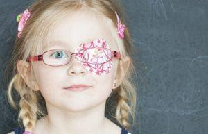 Синдром ленивого глаза или же амблиопия