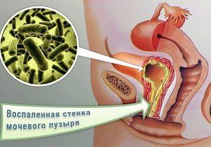 бактериальный цистит лечение у женщин